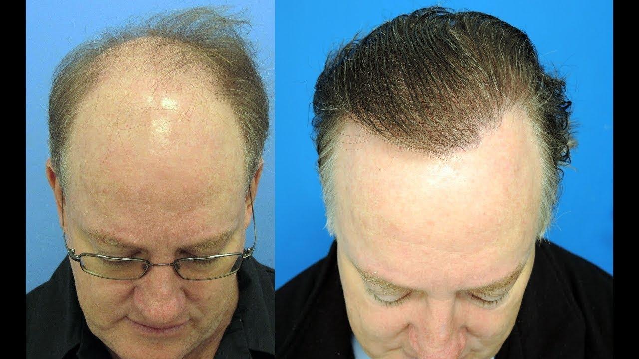 Comment éviter la perte de cheveux - 20 étapes